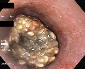 Chia seed impaction in esophagus