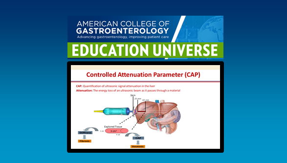 ACG Blog - American College of Gastroenterology